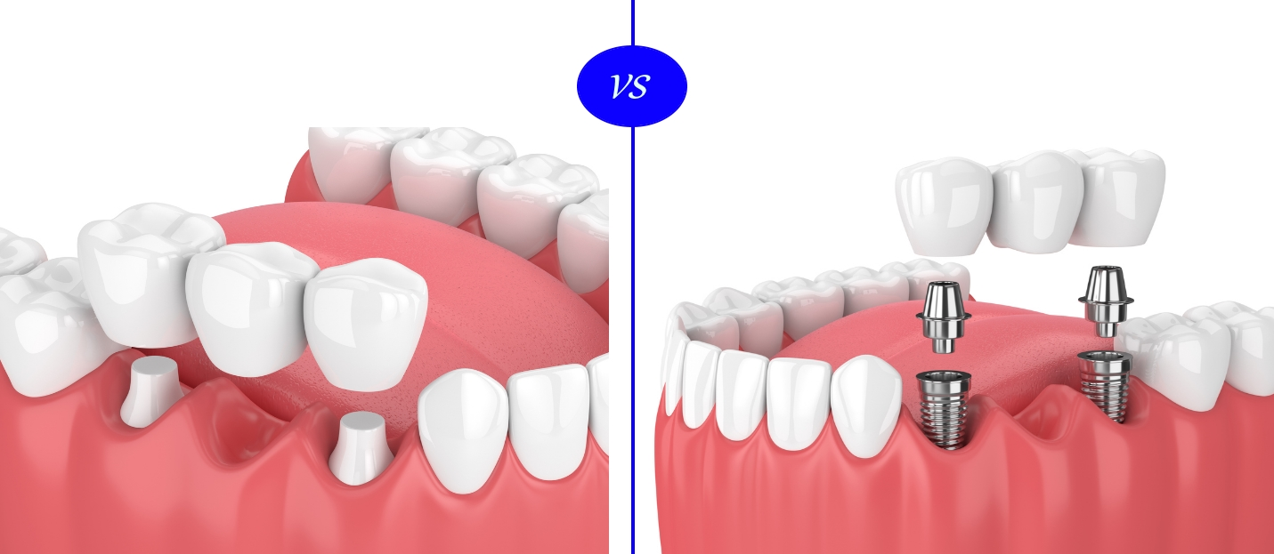 dental-implants-vs-dental-bridge