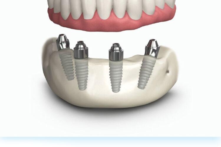 All On Four Dental implant